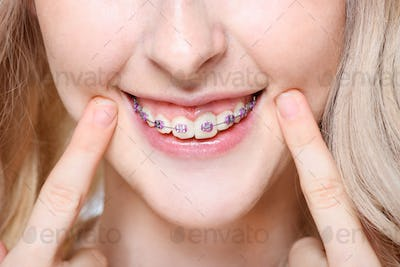 Closeup of a young woman pointing to her teeth with braces.