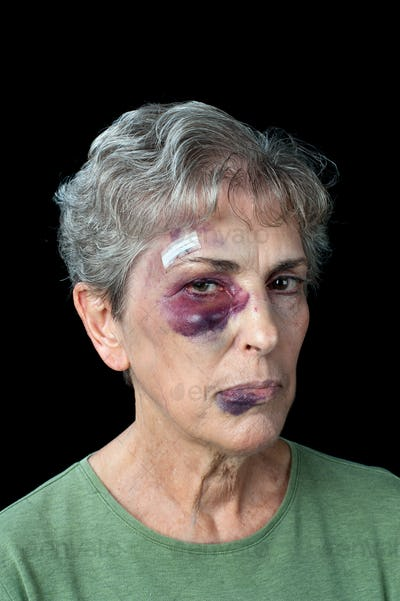 Beaten elderly woman