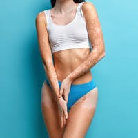 Accepting oneself. Cropped image of faceless woman has vitiligo long termed skin condition has flat