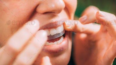 Woman Using Whitening Stipes or Whitestrips. Whitening Teeth at Home.
