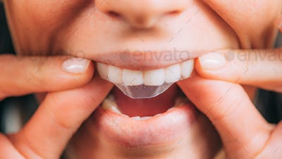 Whitestrips or Teeth Whitening Strips.