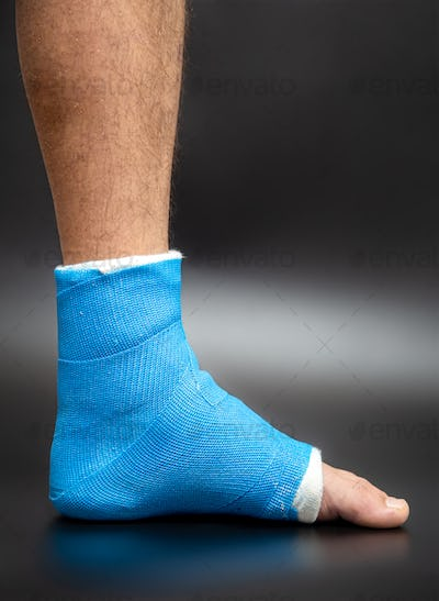 Close up photos of foot blue splint for treatment of injuries from ankle sprain.