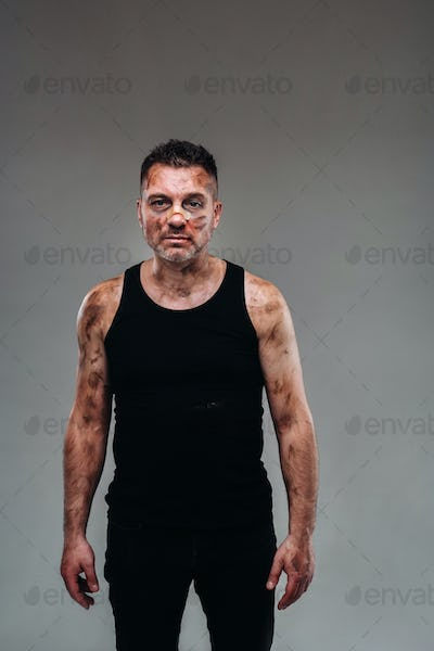a battered man in a black T shirt who looks like a drug addict and a drunk stands against