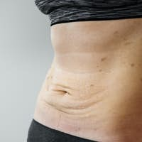 Woman belly with lichen planus