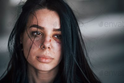 Portrait of beaten young woman with bruise under eye indoors in abandoned building