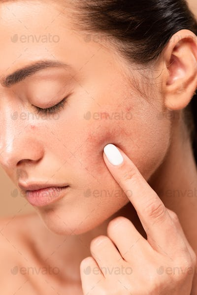 young woman pointing with finger at face with problem skin isolated on beige