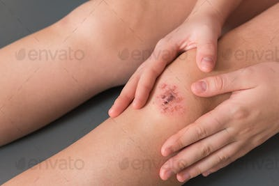 Injured leg wound knee with blood and doctor's hands in blue medical gloves treats a patient