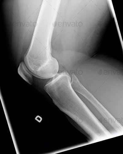 X-ray of knee with Chondromalacia condition
