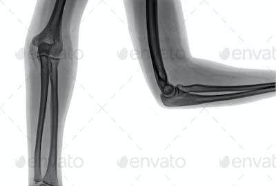 X-ray elbow