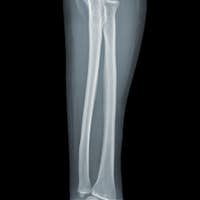 Elbow X-ray negative